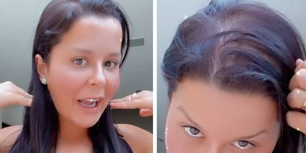Maraísa enfrenta uma condição de alopecia, uma forma de 'calvície feminina'